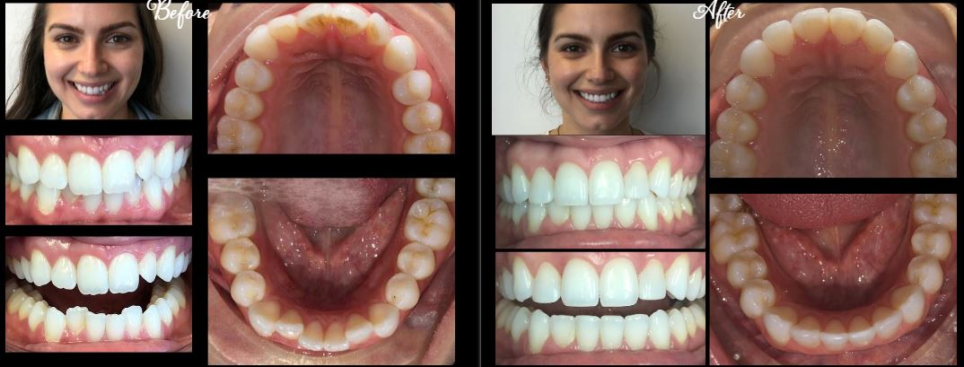 invisalign dentist stamford ct | before after 2