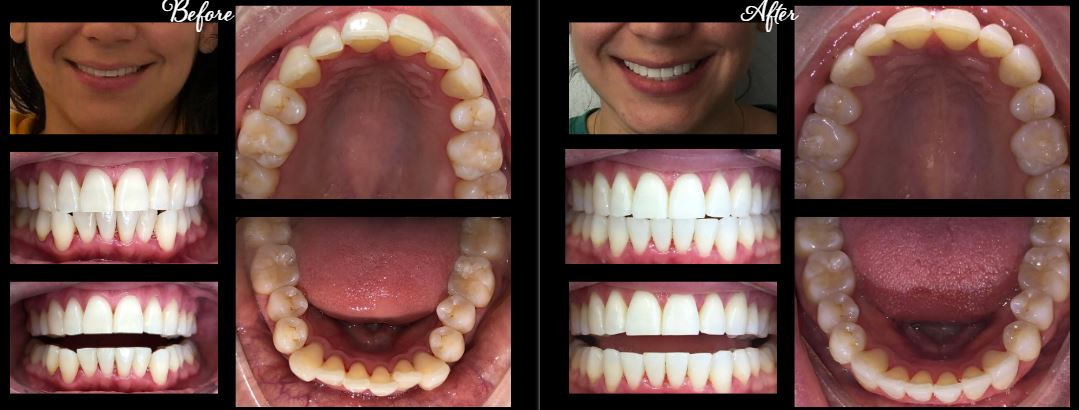 invisalign stamford ct | before after 3