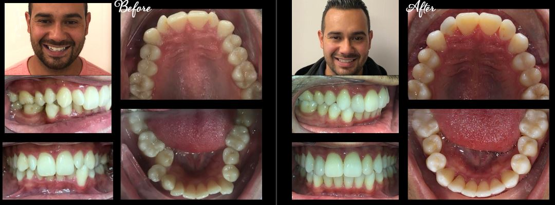 invisalign stamford ct | before after 4