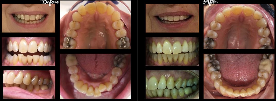 invisalign stamford ct | before after 5